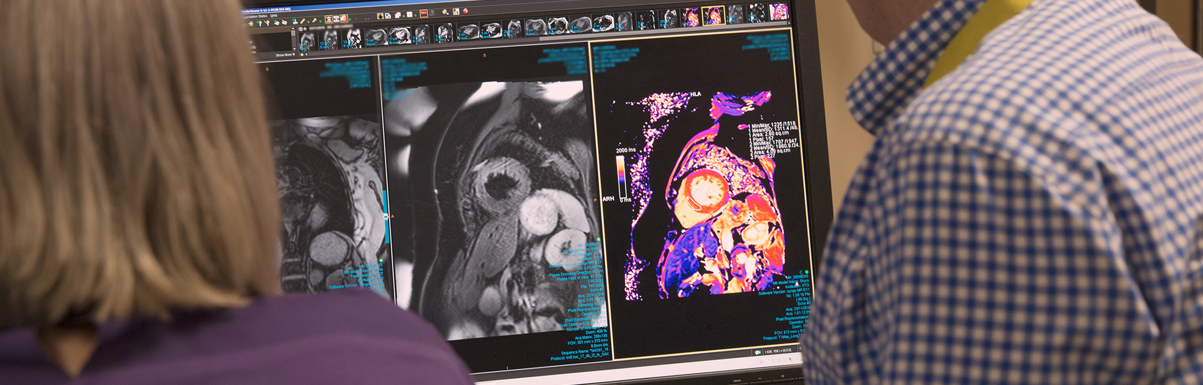 Heart Vision - Image 3
